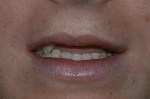 Implantologia Dentale Parabiago